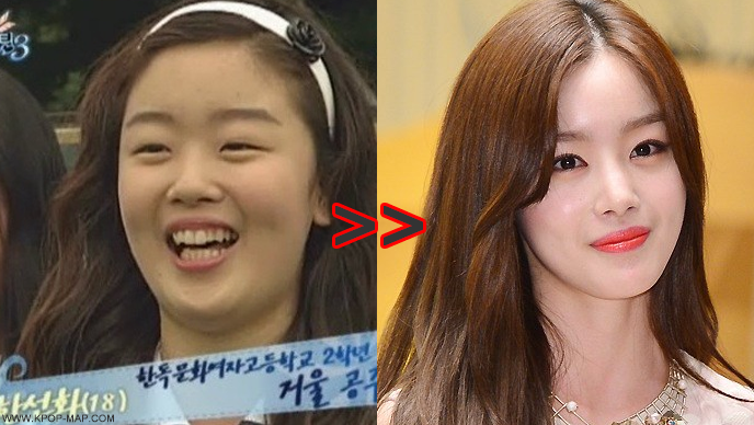 kpop celebrity plastic surgery before and after