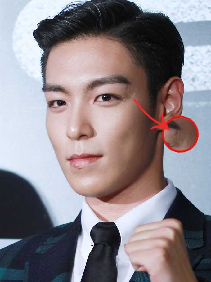 See 8 Idol Stars With Physical Scars Kpopmap