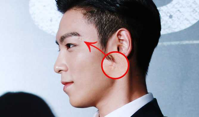 See 8 Idol Stars With Physical Deformities
