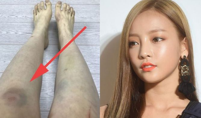 Goo Hara Assault