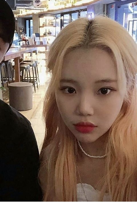 Netizens Say Momoland Jooe Looks Good After Supposed Eye