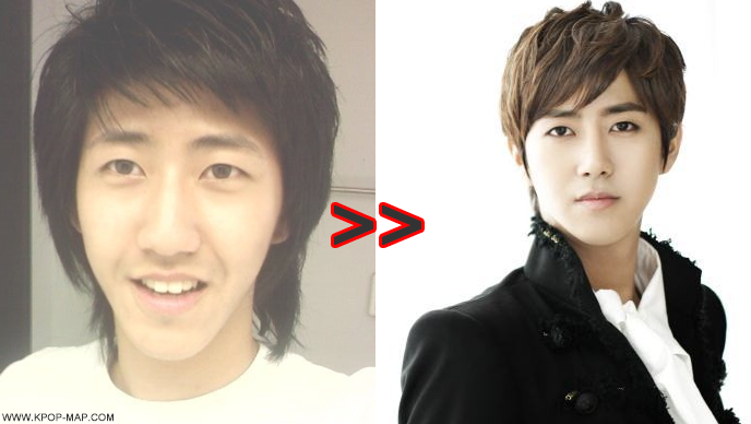 Sunhwa plastic surgery